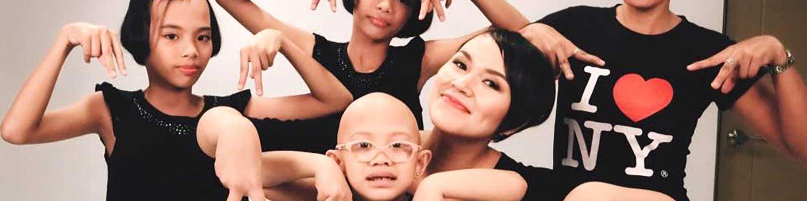 inverted V for alopecia